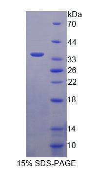 ASGR2 Protein - Recombinant  Asialoglycoprotein Receptor 2 By SDS-PAGE