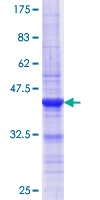 ASH2L / ASH2 Protein - 12.5% SDS-PAGE Stained with Coomassie Blue.