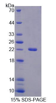 ATP1A1 Protein - Recombinant ATPase, Na+/K+ Transporting Alpha 1 Polypeptide By SDS-PAGE