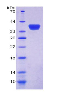 ATR Protein - Recombinant  Ataxia Telangiectasia And Rad3 Related Protein By SDS-PAGE