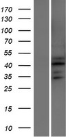 ATXN7L2 Protein - Western validation with an anti-DDK antibody * L: Control HEK293 lysate R: Over-expression lysate