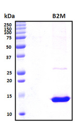 B2M / Beta 2 Microglobulin Protein - SDS-PAGE under reducing conditions and visualized by Coomassie blue staining