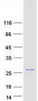 BAD Protein - Purified recombinant protein BAD was analyzed by SDS-PAGE gel and Coomassie Blue Staining