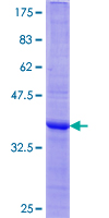 BAFF / TNFSF13B Protein - 12.5% SDS-PAGE Stained with Coomassie Blue.