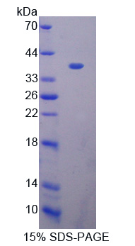 BCAS3 Protein - Recombinant  Breast Carcinoma Amplified Sequence 3 By SDS-PAGE