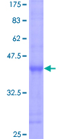 BCL7C Protein - 12.5% SDS-PAGE Stained with Coomassie Blue.