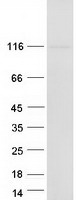 BICC1 Protein - Purified recombinant protein BICC1 was analyzed by SDS-PAGE gel and Coomassie Blue Staining