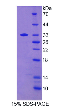 BLK Protein - Recombinant B-Lymphoid Tyrosine Kinase By SDS-PAGE