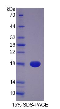 BLVRA Protein - Recombinant  Biliverdin Reductase A By SDS-PAGE