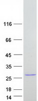 BMF Protein - Purified recombinant protein BMF was analyzed by SDS-PAGE gel and Coomassie Blue Staining