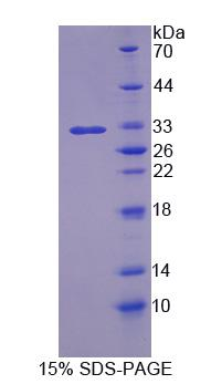 BMPER Protein - Recombinant  BMP Binding Endothelial Regulator By SDS-PAGE