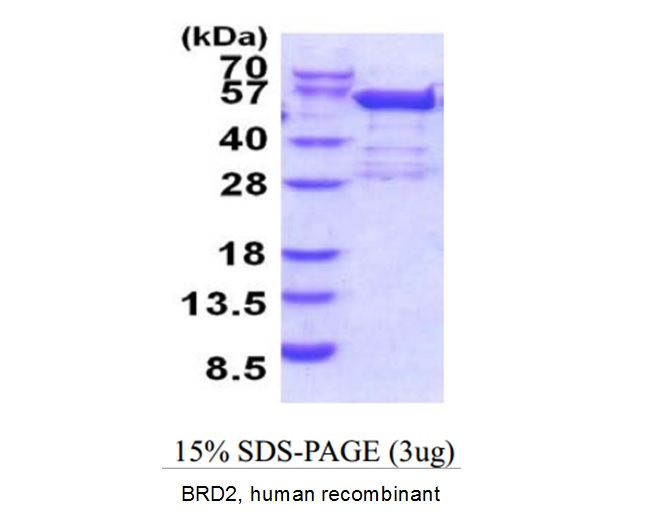BRD2 / RING3 Protein