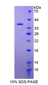 c-Met Protein - Recombinant  Hepatocyte Growth Factor Receptor By SDS-PAGE
