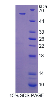 C1QTNF1 / CTRP1 Protein - Recombinant C1q And Tumor Necrosis Factor Related Protein 1 By SDS-PAGE