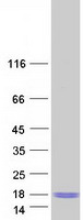 C9orf16 Protein - Purified recombinant protein C9orf16 was analyzed by SDS-PAGE gel and Coomassie Blue Staining