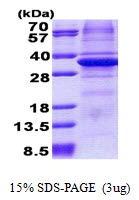 CA11 / Carbonic Anhydrase XI Protein