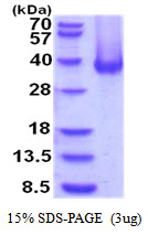 CA12 / Carbonic Anhydrase XII Protein