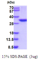 CA13 / Carbonic Anhydrase XIII Protein