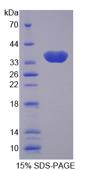 CA8 / Carbonic Anhydrase VIII Protein - Recombinant Carbonic Anhydrase VIII By SDS-PAGE