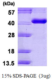 CA8 / Carbonic Anhydrase VIII Protein