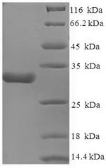 CACNA2D1 Protein - (Tris-Glycine gel) Discontinuous SDS-PAGE (reduced) with 5% enrichment gel and 15% separation gel.