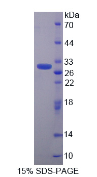 CACYBP Protein - Recombinant  Calcyclin Binding Protein By SDS-PAGE