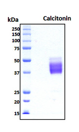 Calcitonin Protein - SDS-PAGE under reducing conditions and visualized by Coomassie blue staining