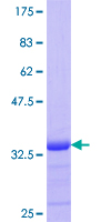 Calgizzarin / S100A11 Protein - 12.5% SDS-PAGE Stained with Coomassie Blue.