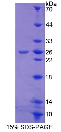 Calneuron-1 / CALN1 Protein - Recombinant Calneuron 1 By SDS-PAGE