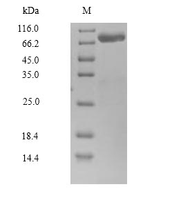 CAPN14 Protein - (Tris-Glycine gel) Discontinuous SDS-PAGE (reduced) with 5% enrichment gel and 15% separation gel.