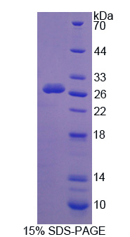 CAPN3 / Calpain 3 Protein - Recombinant Calpain 3 By SDS-PAGE