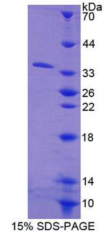 Carboxylesterase 1 / CES1 Protein - Recombinant Carboxylesterase 1 By SDS-PAGE