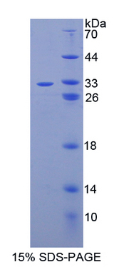 CASP14 / Caspase 14 Protein - Recombinant  Caspase 14 By SDS-PAGE