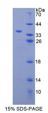 CBR / CBR1 Protein - Recombinant Carbonyl Reductase 1 By SDS-PAGE