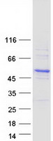 Purified recombinant protein CBWD6 was analyzed by SDS-PAGE gel and Coomassie Blue Staining