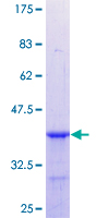 CBX1 / HP1 Beta Protein - 12.5% SDS-PAGE Stained with Coomassie Blue.