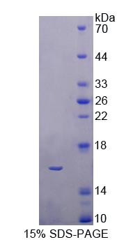 CBY1 / PGEA1 Protein - Recombinant Chibby Homolog 1 By SDS-PAGE