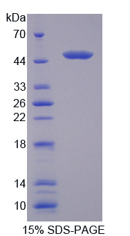 CCBL1 Protein - Recombinant Cysteine Conjugate Beta Lyase, Cytoplasmic By SDS-PAGE