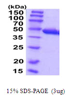 CCBL1 Protein