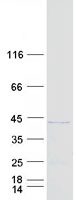 CCDC68 Protein - Purified recombinant protein CCDC68 was analyzed by SDS-PAGE gel and Coomassie Blue Staining
