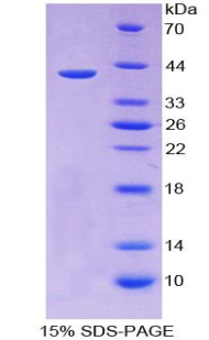 CCL13 / MCP4 Protein - Recombinant  Monocyte Chemotactic Protein 4 By SDS-PAGE
