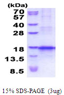 CCL25 / TECK Protein
