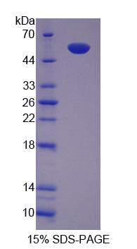 CCT2 / CCT Beta Protein - Recombinant  Chaperonin Containing TCP1, Subunit 2 By SDS-PAGE