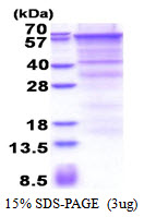 CD105 Protein