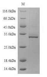 CD19 Protein - (Tris-Glycine gel) Discontinuous SDS-PAGE (reduced) with 5% enrichment gel and 15% separation gel.