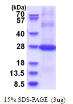 CD200 Protein
