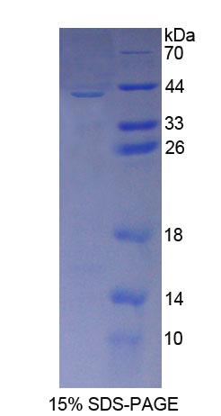 CD209 / DC-SIGN Protein - Recombinant  C-Type Lectin Domain Family 4, Member L By SDS-PAGE