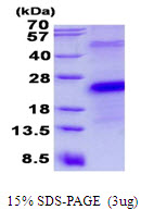 CD27 Protein
