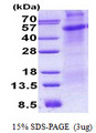 CD30 Protein