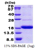 CD300A Protein